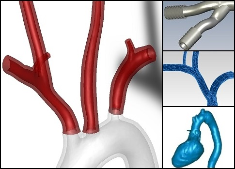Rendered view of digital 3D model of modified blood vessel geometry with designed fittings.