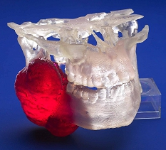 Biomodel of full jaw with tumor shown in red.
